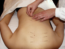 Acupuncture points on the back relieve back pain and influence the internal organs.