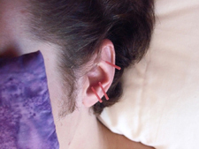 Patient relaxing with ear acupuncture. Ear points are especially good at calming the spirit.